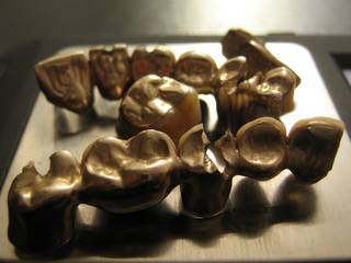 Close up of dental scrap gold