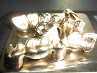 Scrap dental gold