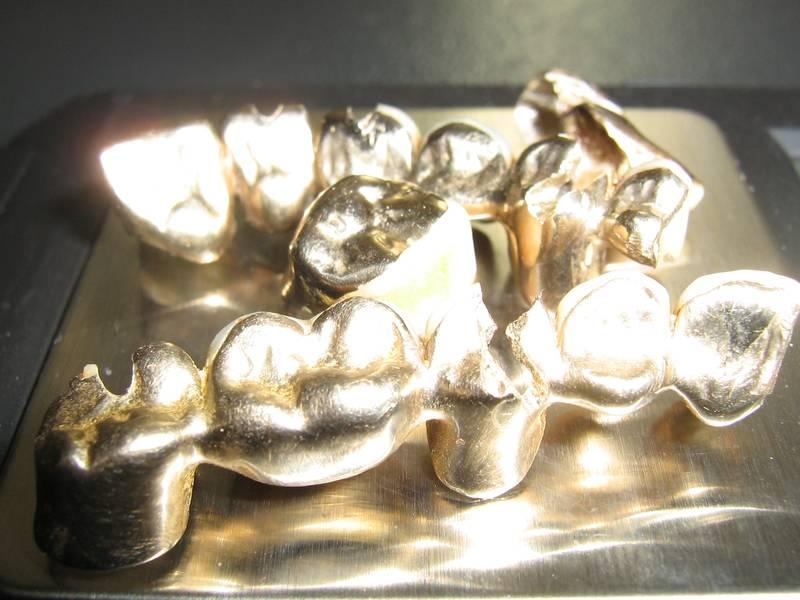Scrap dental gold